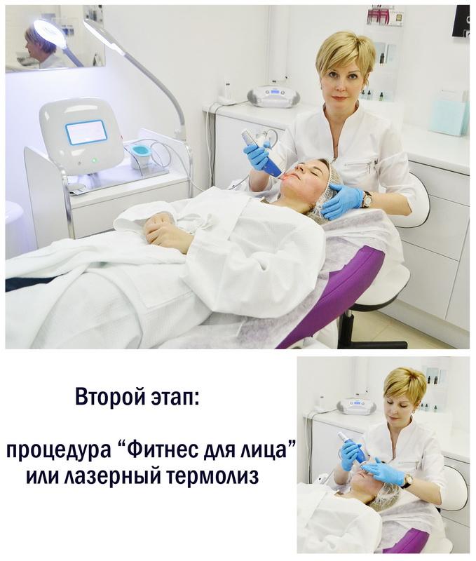 """Личный опыт: Лазерный фототермолиз или """"Фитнес для лица"""" в Clinica Ideal"""